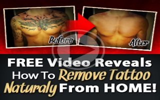Remove tattoo permanently - Home tattoo removal - Infoye